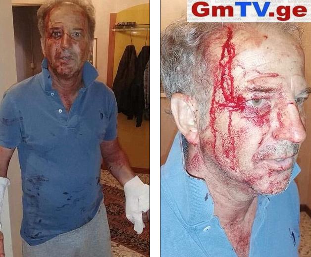 მიგრანტები იტალიის პოლიციის კომისარს თავს საკუთარ სახლში დაესხნენ